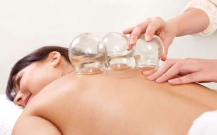 10988893 - acupuncture therapist removing a fire cupping glass from the back of a young woman